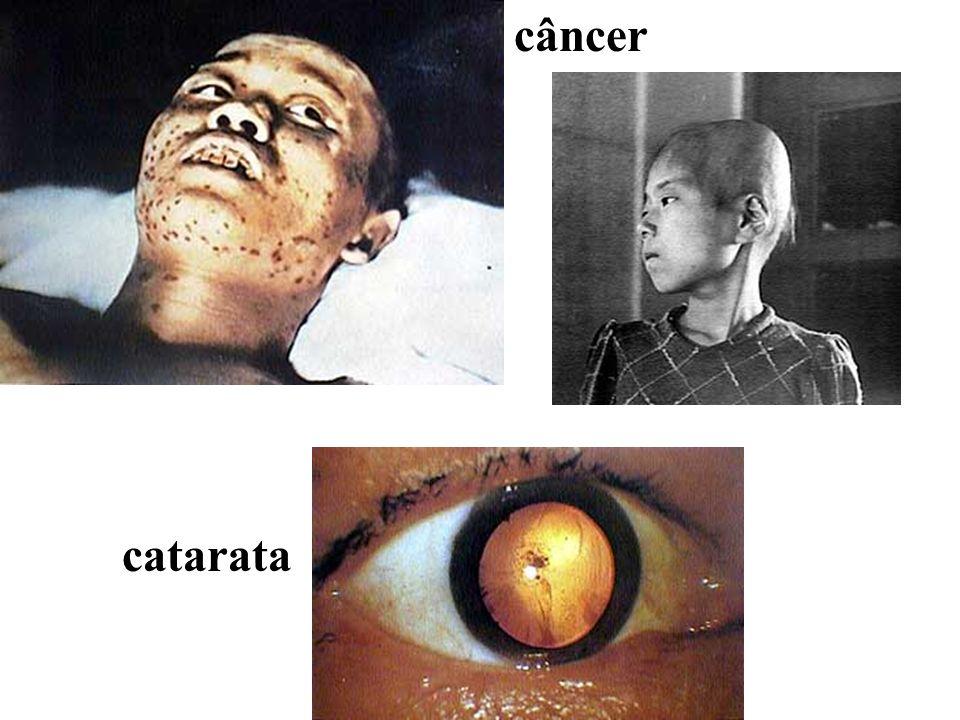 câncer catarata