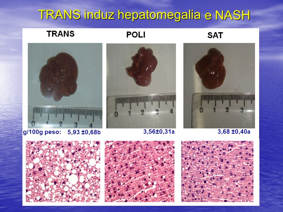 TRANS induz hepatomegalia