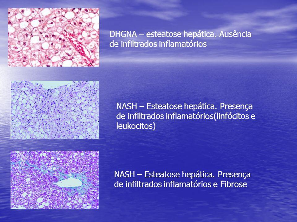 DHGNA – esteatose hepática. Ausência de infiltrados inflamatórios