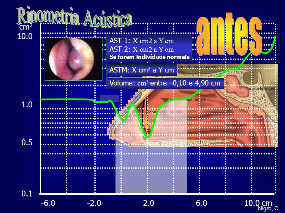 Rinometria Acústica antes cm2 10.0 1.0 0.5 0.1
