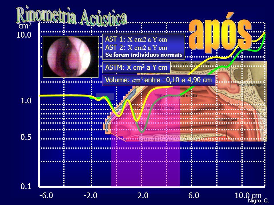 Rinometria Acústica após cm2 10.0 1.0 0.5 0.1