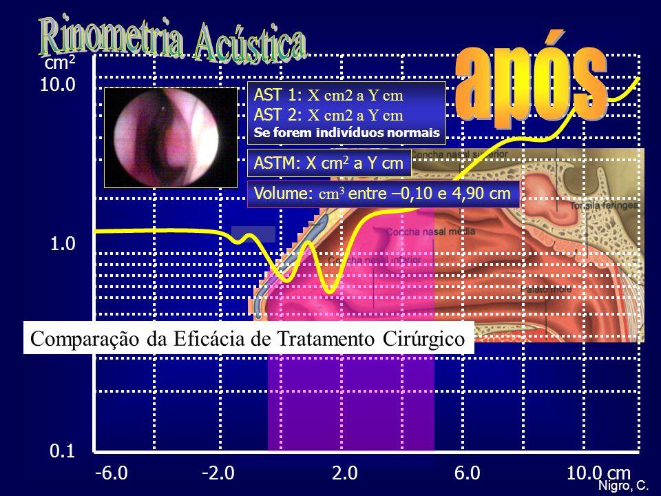 Rinometria Acústica após