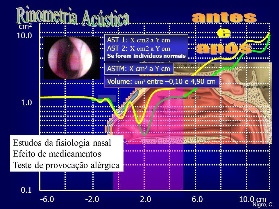 Rinometria Acústica antes e após Estudos da fisiologia nasal