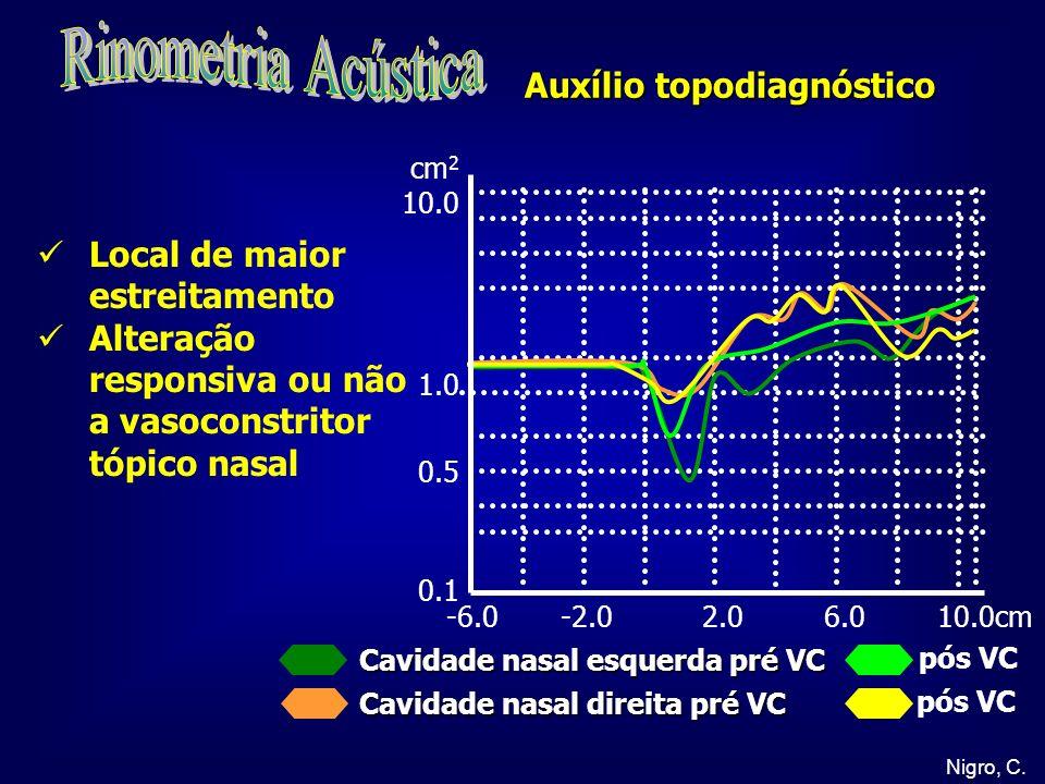 Rinometria Acústica Auxílio topodiagnóstico