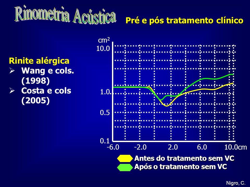 Rinometria Acústica Pré e pós tratamento clínico Rinite alérgica