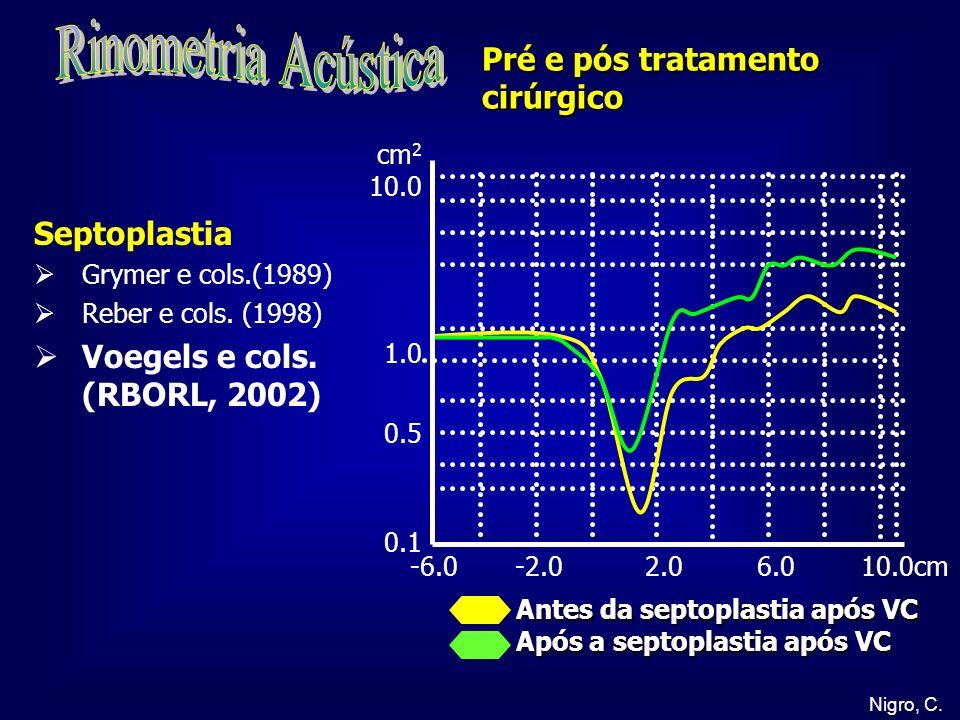 Rinometria Acústica Pré e pós tratamento cirúrgico Septoplastia