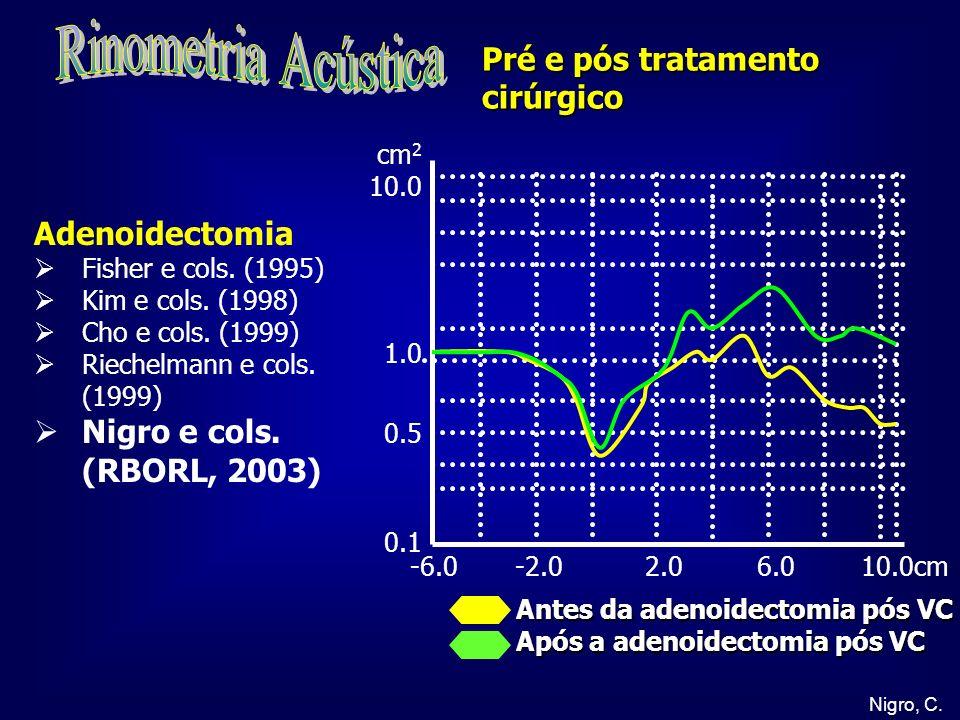 Rinometria Acústica Pré e pós tratamento cirúrgico Adenoidectomia