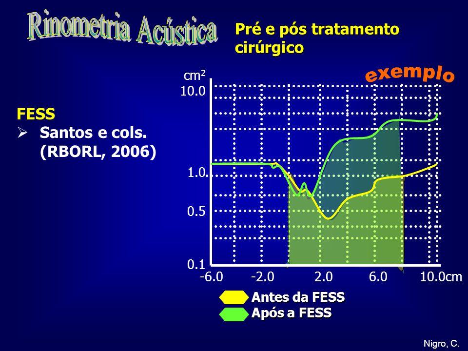 Rinometria Acústica exemplo Pré e pós tratamento cirúrgico FESS