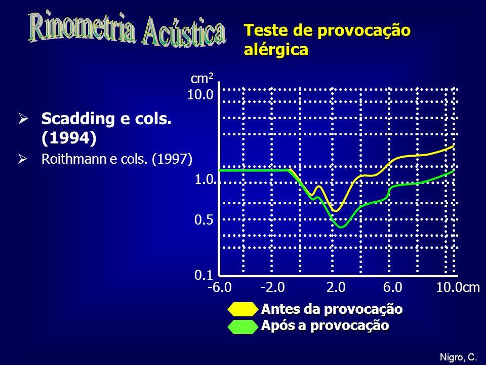 Rinometria Acústica Teste de provocação alérgica