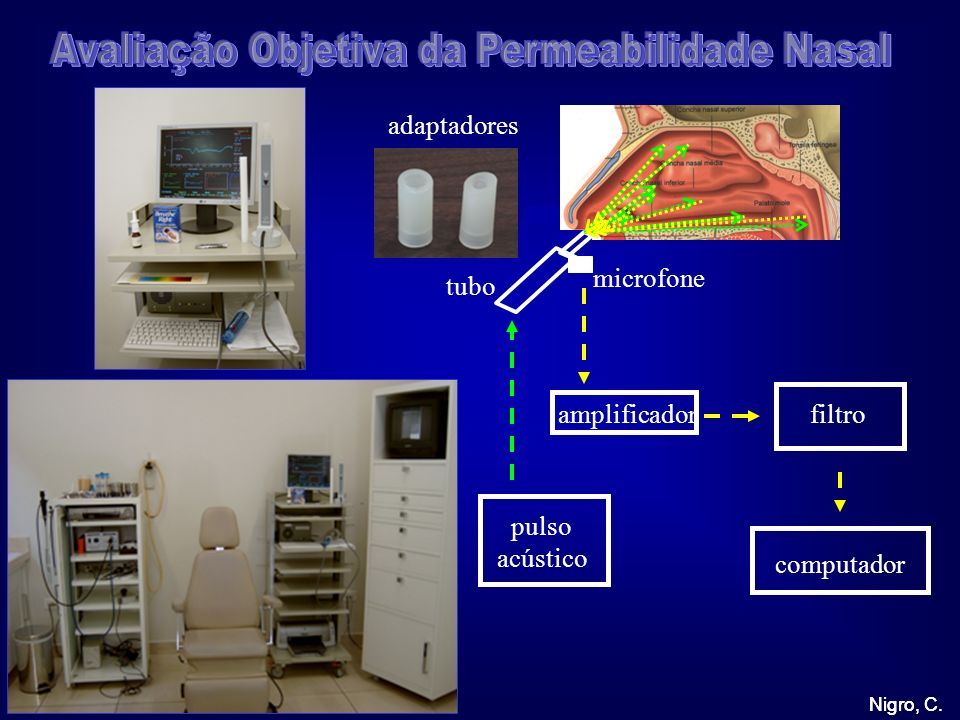 Avaliação Objetiva da Permeabilidade Nasal
