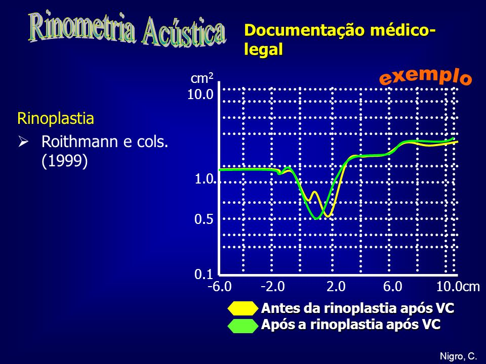 Rinometria Acústica exemplo Documentação médico-legal Rinoplastia