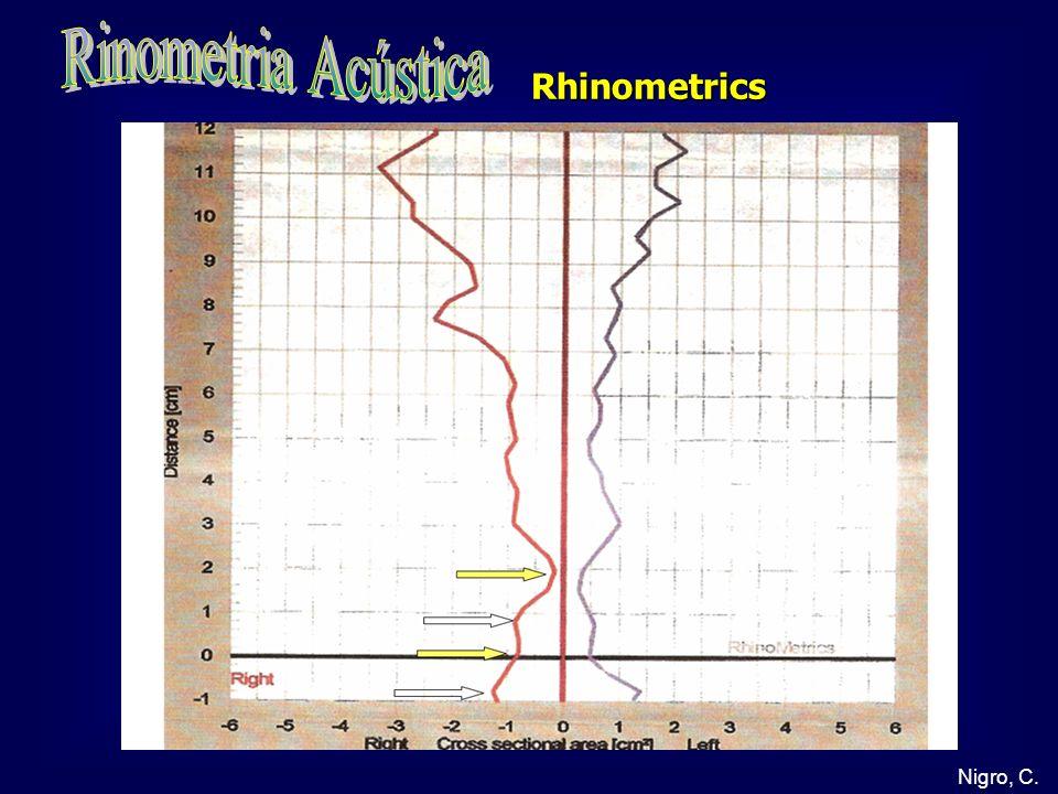 Rinometria Acústica Rhinometrics