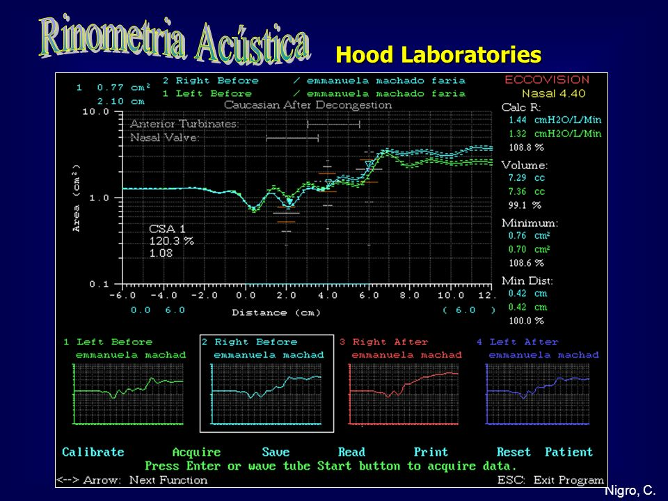 Rinometria Acústica Hood Laboratories