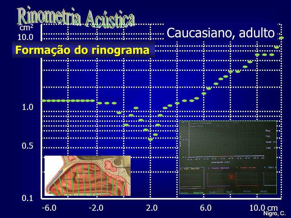 Rinometria Acústica Caucasiano, adulto Formação do rinograma cm2 10.0
