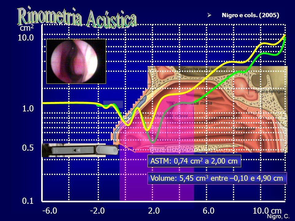 Rinometria Acústica cm2 10.0 1.0 0.5 0.1 -6.0 -2.0 2.0 6.0 10.0 cm