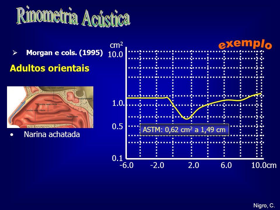 Rinometria Acústica exemplo Adultos orientais cm2 10.0 1.0 0.5 0.1