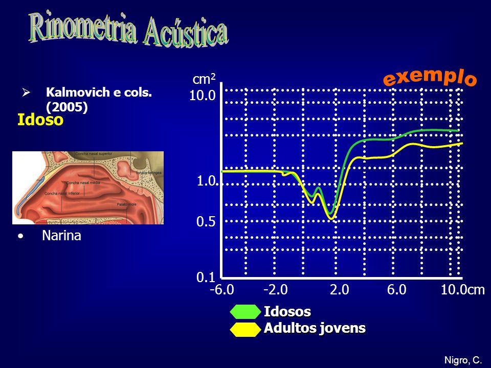 Rinometria Acústica exemplo Idoso cm2 10.0 1.0 0.5 0.1 Narina