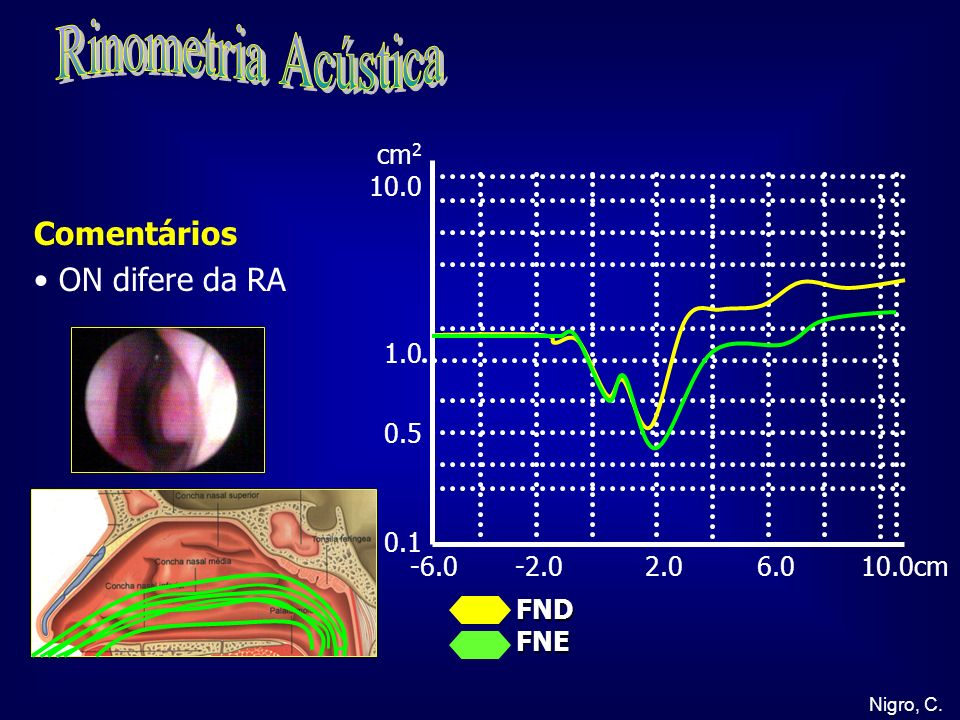Rinometria Acústica Comentários ON difere da RA cm2 10.0 1.0 0.5 0.1