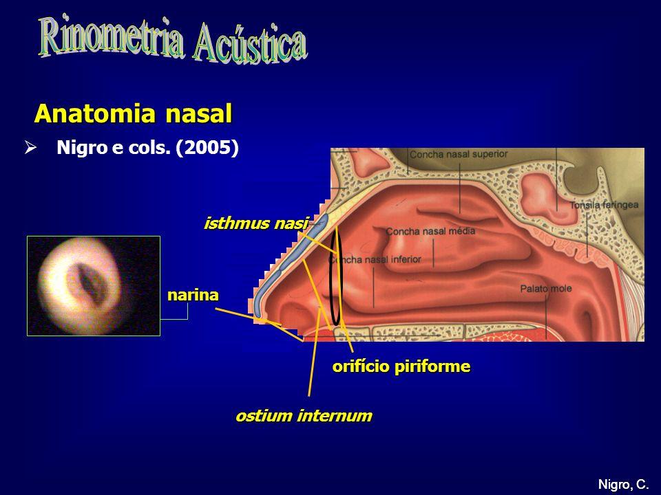 Rinometria Acústica Anatomia nasal Nigro e cols. (2005) isthmus nasi