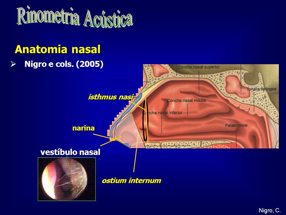 Rinometria Acústica Anatomia nasal Nigro e cols. (2005)