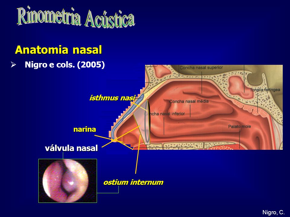 Rinometria Acústica Anatomia nasal Nigro e cols. (2005) válvula nasal