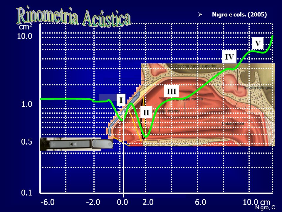 Rinometria Acústica cm2 10.0 V IV 1.0 0.5 III I 0.1 II