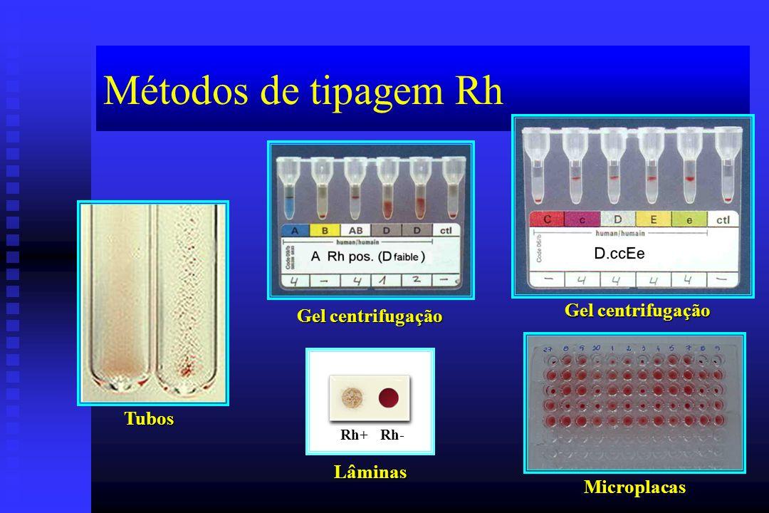 Métodos de tipagem Rh Gel centrifugação Gel centrifugação Tubos