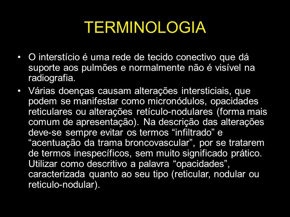 TERMINOLOGIA O interstício é uma rede de tecido conectivo que dá suporte aos pulmões e normalmente não é visível na radiografia.