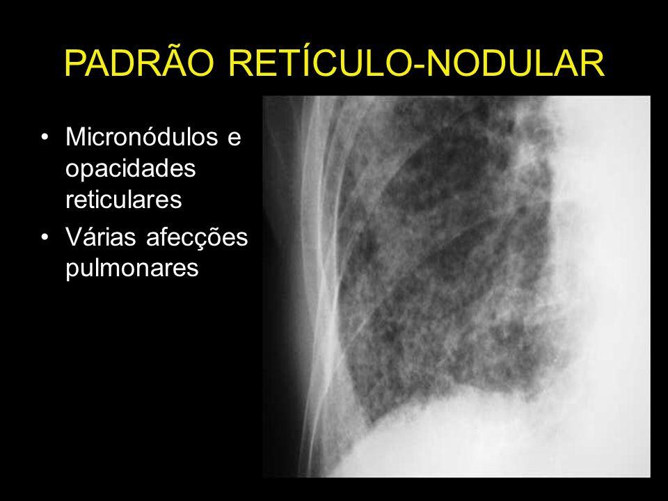 PADRÃO RETÍCULO-NODULAR