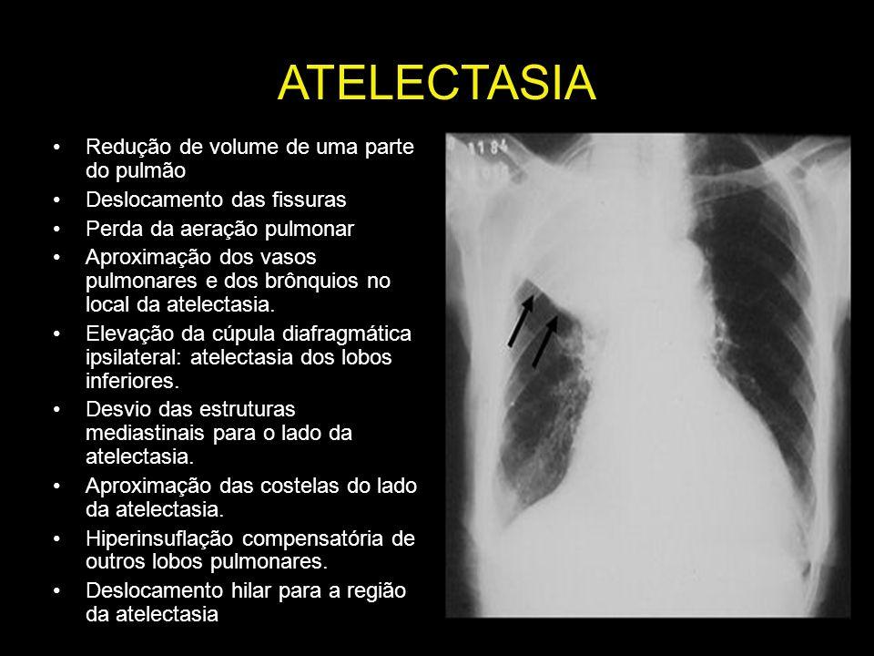 ATELECTASIA Redução de volume de uma parte do pulmão