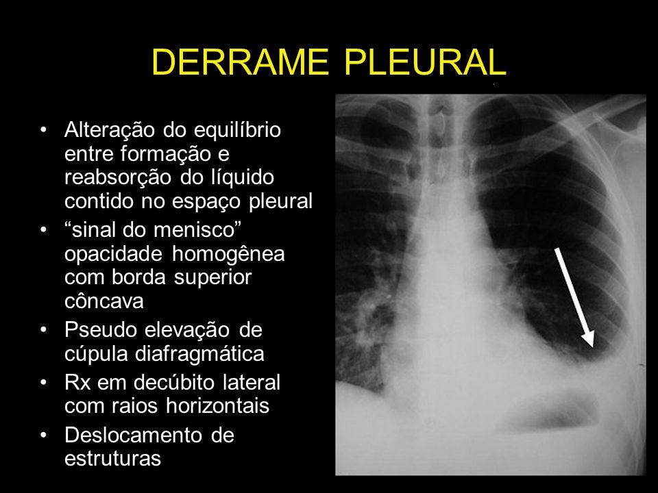DERRAME PLEURALAlteração do equilíbrio entre formação e reabsorção do líquido contido no espaço pleural.
