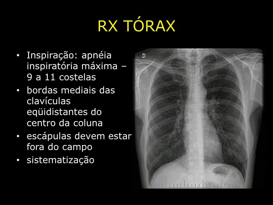 RX TÓRAX Inspiração: apnéia inspiratória máxima – 9 a 11 costelas
