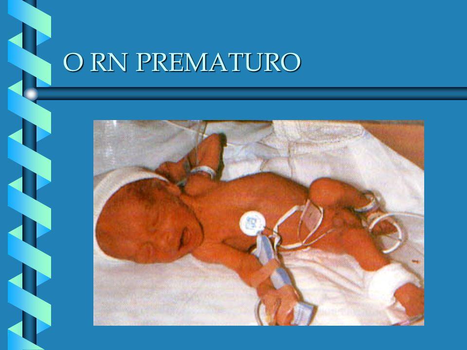 O RN PREMATURO