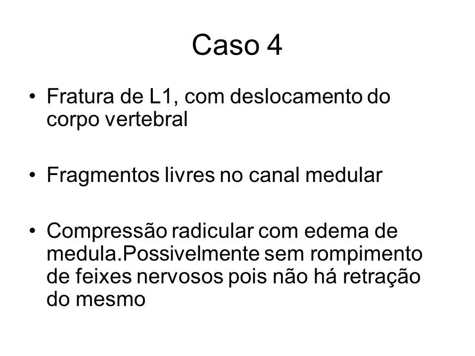 Caso 4 Fratura de L1, com deslocamento do corpo vertebral