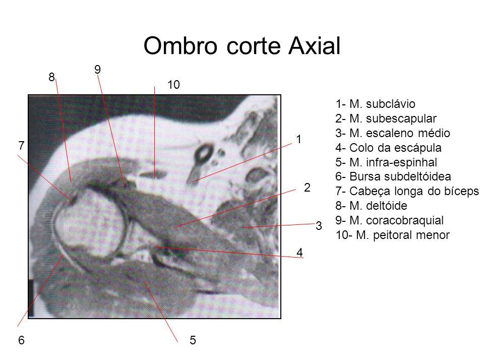 Ombro corte Axial 9 8 10 1- M. subclávio 2- M. subescapular