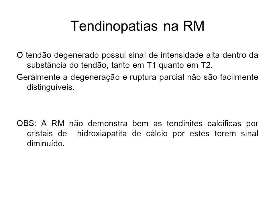 Tendinopatias na RM O tendão degenerado possui sinal de intensidade alta dentro da substância do tendão, tanto em T1 quanto em T2.