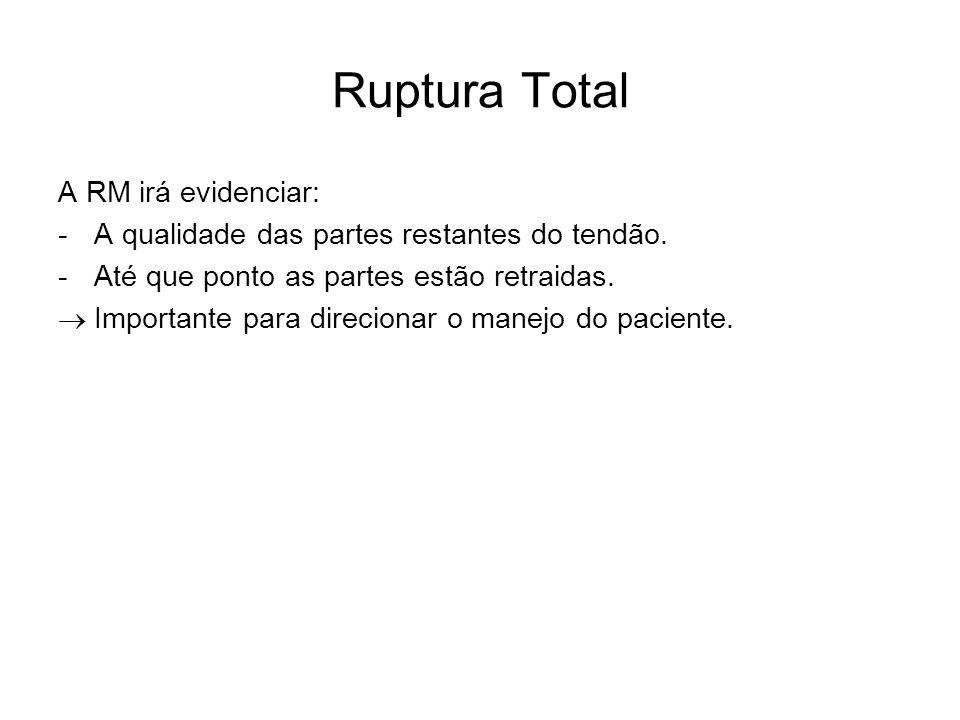 Ruptura Total A RM irá evidenciar: