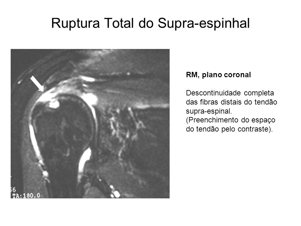 Ruptura Total do Supra-espinhal