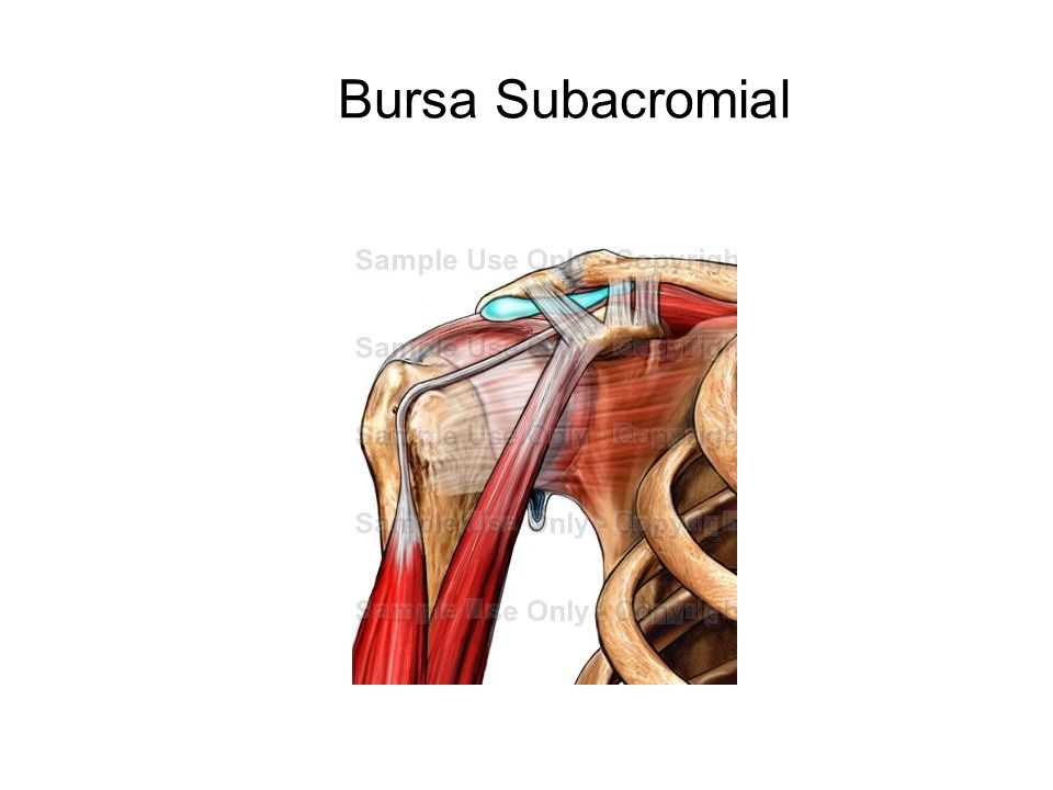 Bursa Subacromial