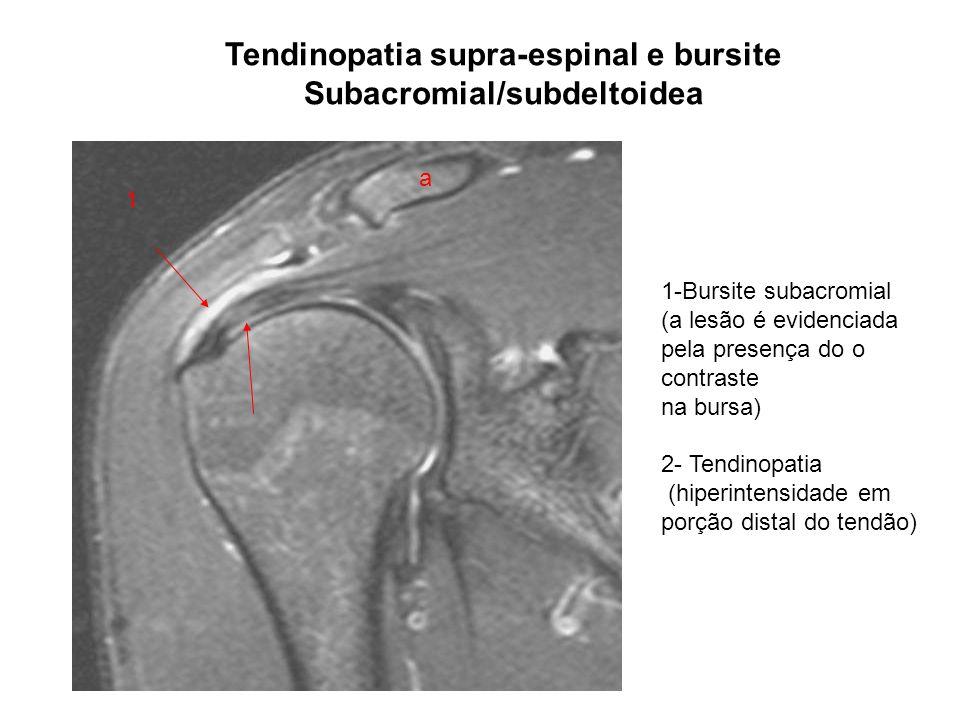 Tendinopatia supra-espinal e bursite Subacromial/subdeltoidea