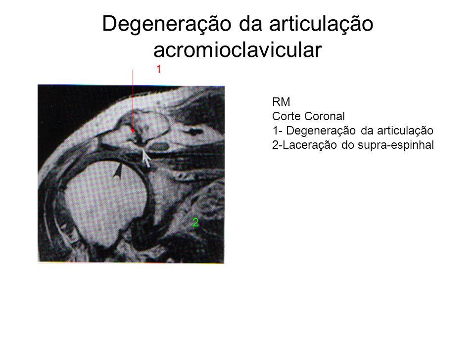 Degeneração da articulação acromioclavicular