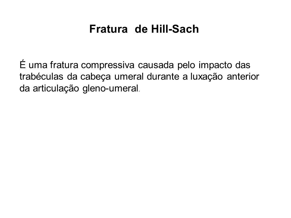 Fratura de Hill-Sach