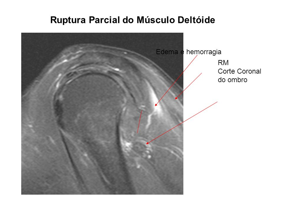 Ruptura Parcial do Músculo Deltóide