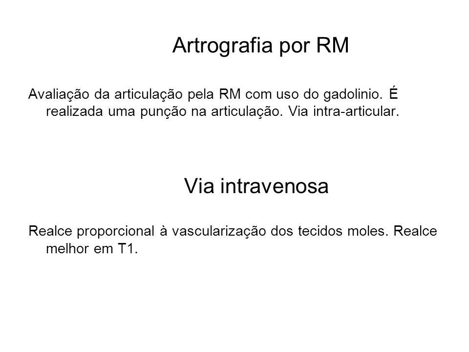 Artrografia por RM Via intravenosa