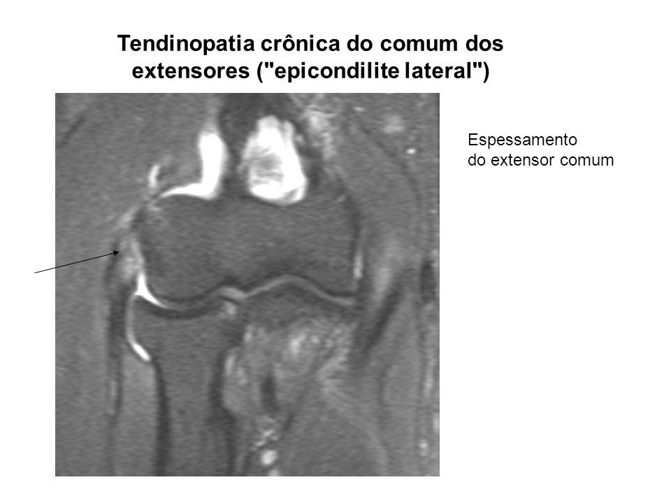 Tendinopatia crônica do comum dos extensores ( epicondilite lateral )