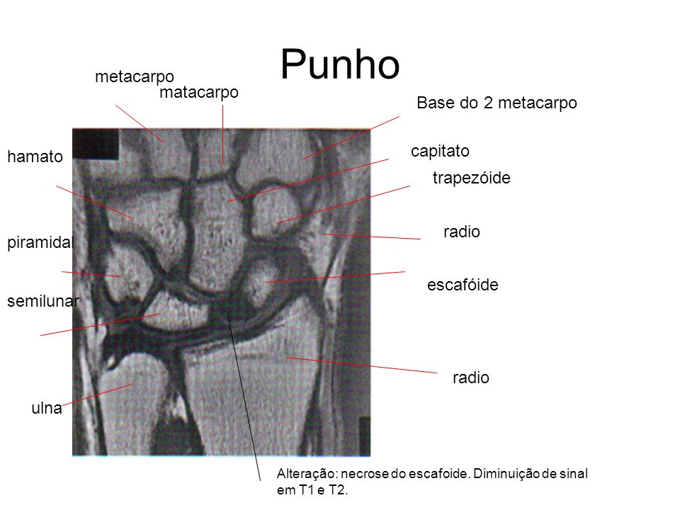 Punho metacarpo matacarpo Base do 2 metacarpo capitato hamato