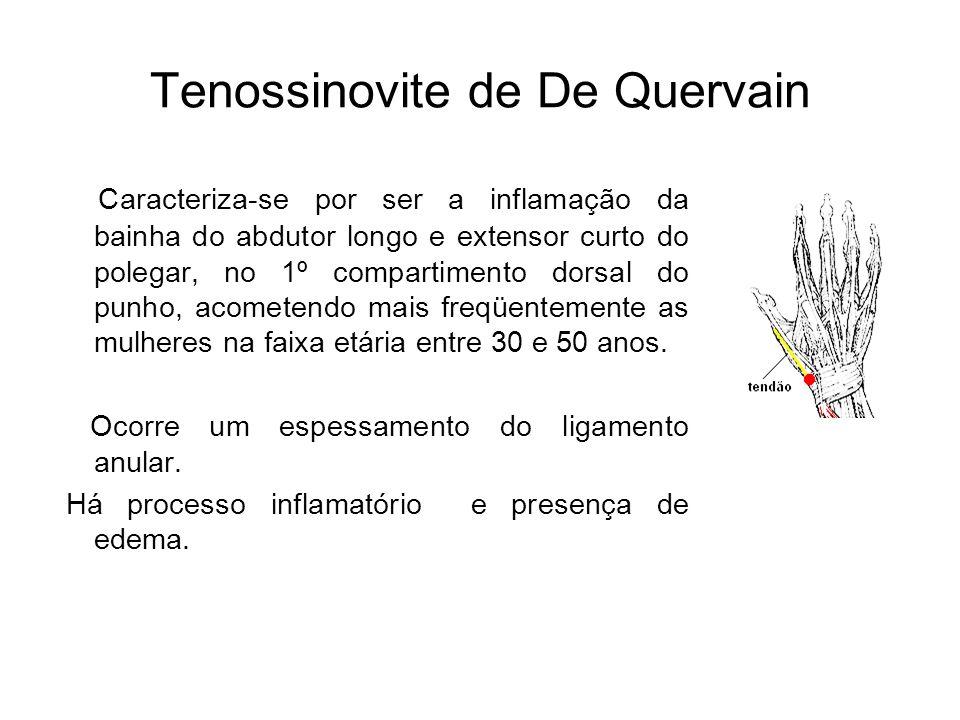 Tenossinovite de De Quervain