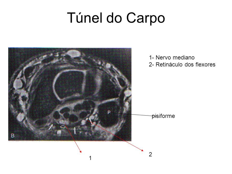 Túnel do Carpo 1- Nervo mediano 2- Retináculo dos flexores pisiforme 2