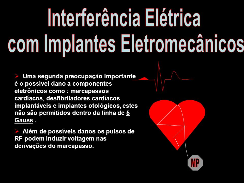 Interferência Elétrica com Implantes Eletromecânicos
