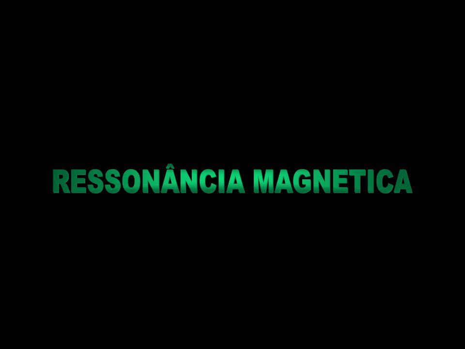 RESSONÂNCIA MAGNETICA